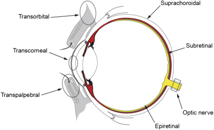 jaskra glaucoma
