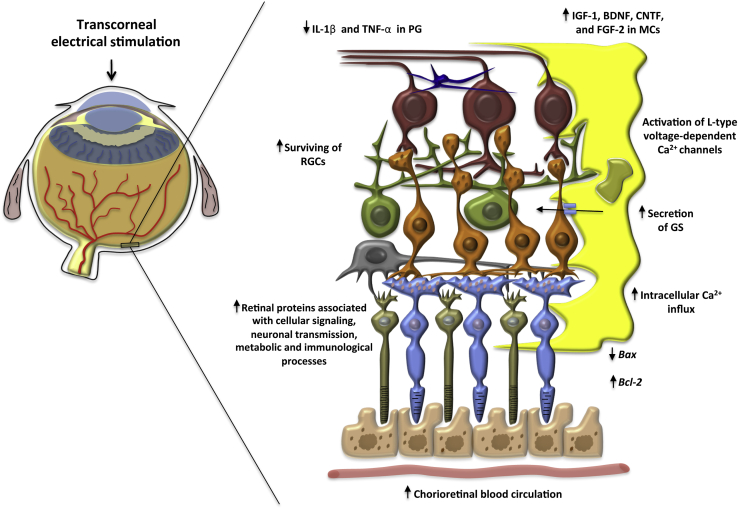 glaucoma jaskra